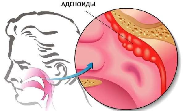 Схема расположения аденоидов