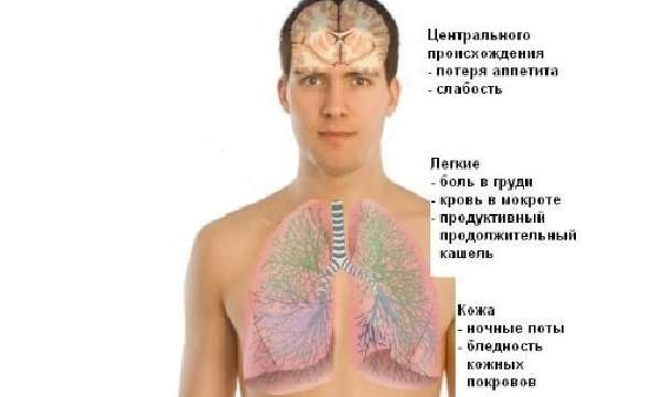 Характеристика инфильтративного туберкулеза