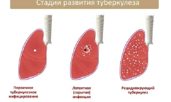 Разновидности туберкулезной инфекции