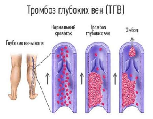 Этиологиязаболевания