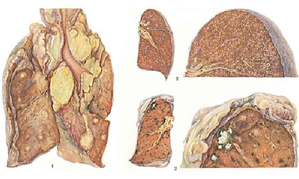 Когда образуется туберкулема?