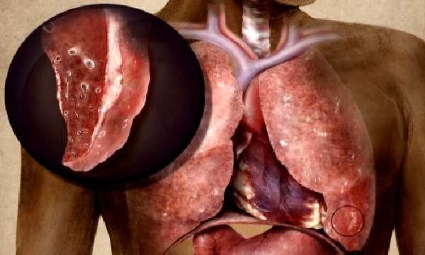 Клинические проявления заболевания