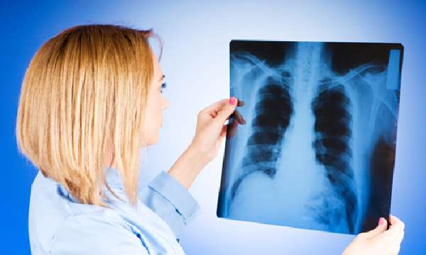 Болезнь туберкулез