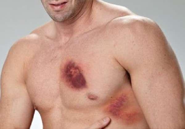 Ушиб грудной клетки симптоматика профилактика лечение