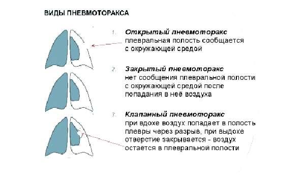 Клиническая картина заболевания