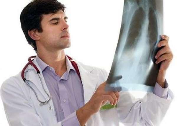 внебольничная очаговая правосторонняя атипичная пневмония