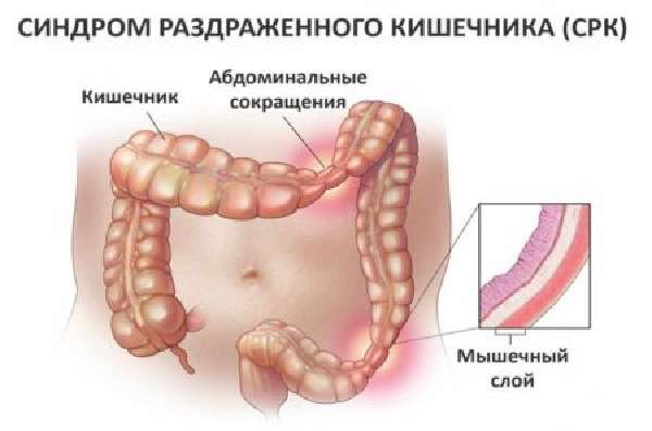 Диета при синдроме раздраженного кишечника СРК
