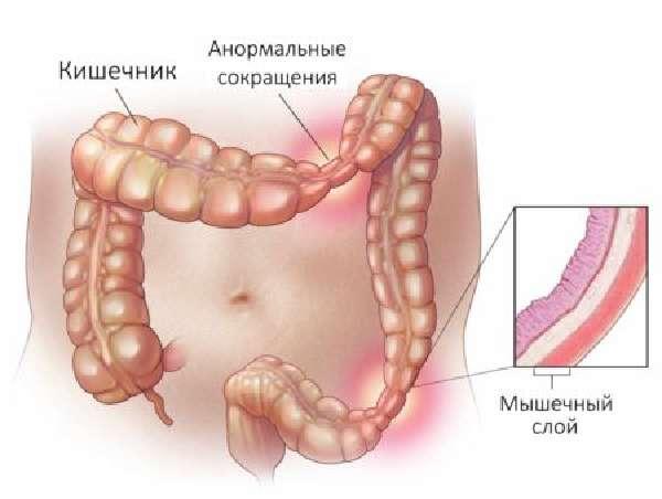 Спастический колит: спазматический хронический колит кишечника с запорами, симптомы и лечение таблетками у взрослых, что это такое, причины заболевания, диета