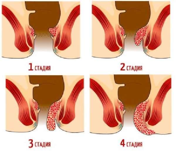 Комбинированный Геморрой 3 Степени Лечение