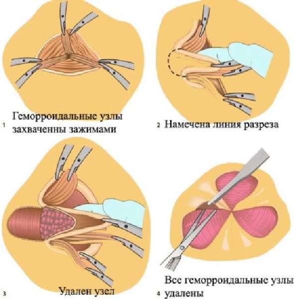 Операция Миллигана-Моргана при геморрое