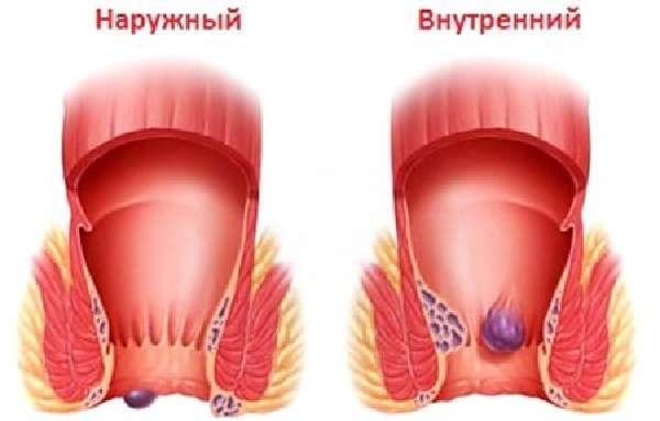 Куда ставить пиявки при геморрое – гирудотерапия, ее эффективность, лечение и противопоказания