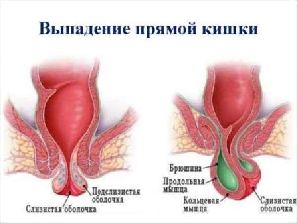 Средства От Геморроя При Беременности