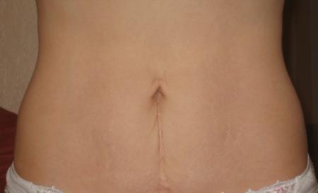 Грыжа кишечника у женщин симптомы