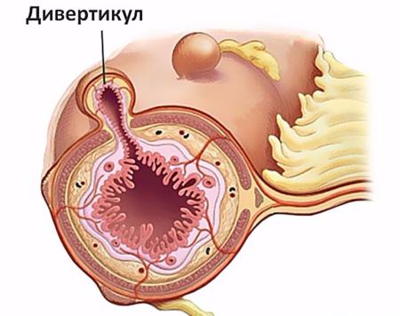 Биопсия что это такое кишечника