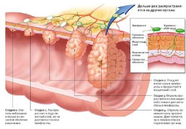 Полип сигмовидной кишки: виды, симптомы и 3 метода лечения