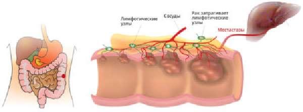 Эффективность гомеопатии в лечении геморроя, правила применения, противопоказания и список основных препаратов
