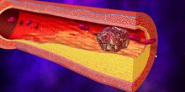 Тромбоз кишечника симптомы