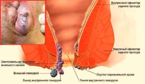 Лечение Запущенного Геморроя