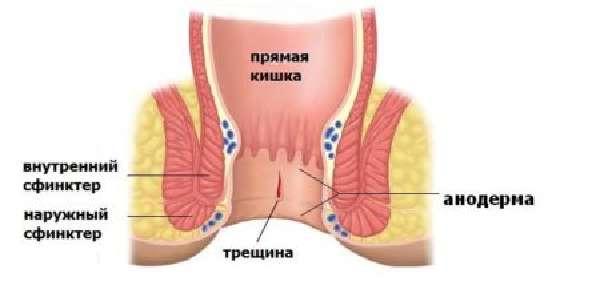 Свечи от геморроя при грудном вскармливании: что использовать при лактации
